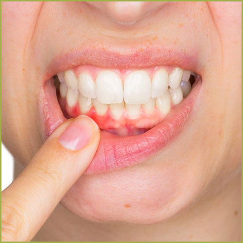 Obrada parodontalnih dzepova