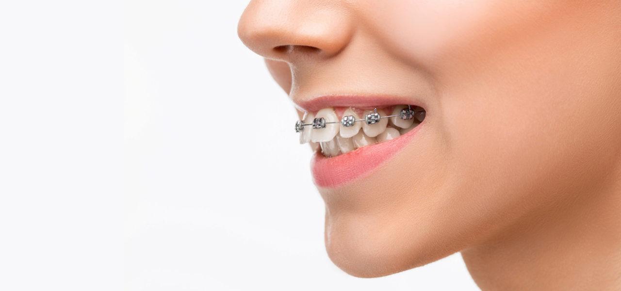 ortodoncija zuba, proteze